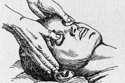 Давление на глазные яблоки при приступе пароксизмальной тахикардии