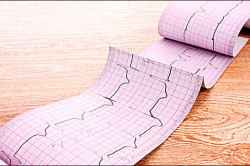 ЭКГ при сердечной недостаточности