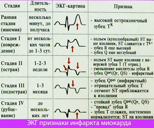 Инфаркт миокарда кокое должно довление