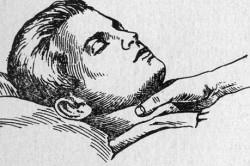 Массаж при тахикардии