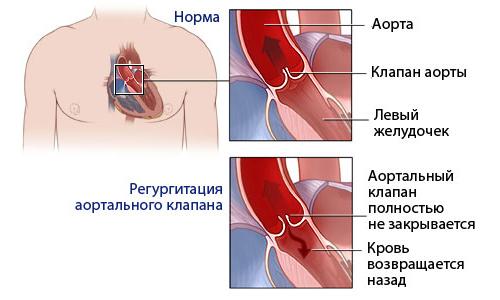 Недостаточность и норма клапана аорты