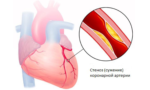 Болит сердце во время беременности