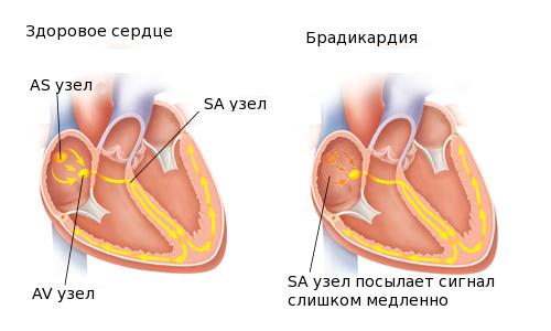 Схема брадикардии сердца