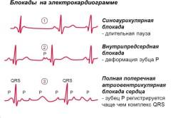 Диагностика блокад сердца
