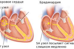 Схема брадикардии