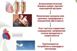 Этапы диагностики стенокардии