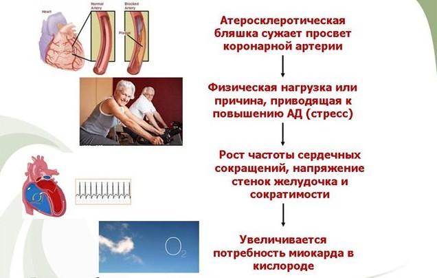 Симптомы и лечение нестабильной стенокардии (видео)
