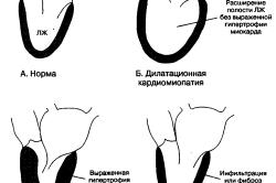 Варианты изменений миокарда
