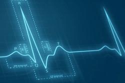 Скачки частоты сердечного ритма