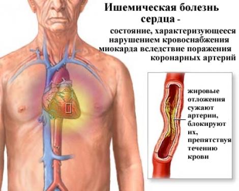 Первые признаки язвы желудка и гастрита :: SYL.ru