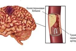 Закупорка кровеносных сосудов при ишемии