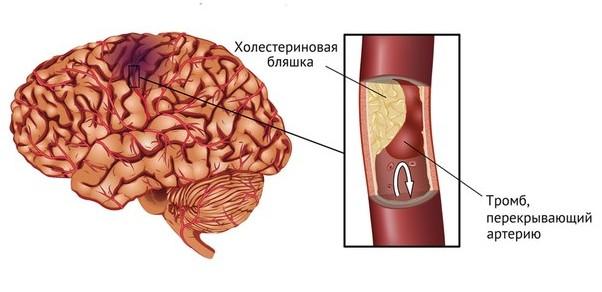 Как контролировать уровень холестерина в крови