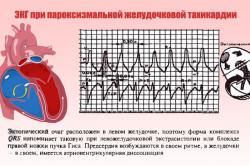 ЭКГ при наджелудочковой пароксизмальной тахикардии