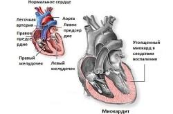 Здоровое сердце и миокардит