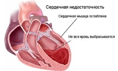 Схема левожелудочковой сердечной недостаточности