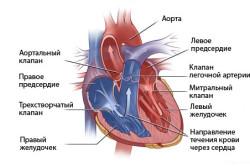 Схема порока сердца