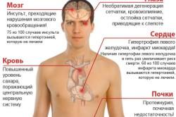 Возможные последствия гипертонии