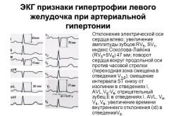 ЭКГ признаки гипертрофии левого желудочка