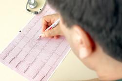 Диагностика тахикардии на ЭКГ