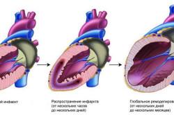 Развитие инфаркта при сердечной недостаточности