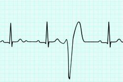 Показания ЭКГ при синусовой аритмии