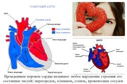 Схема врожденного порока сердца