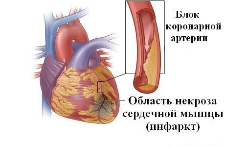 Инфаркт миокарда артериальное давление