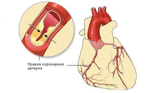 Закупорка артерий при ишемической болезни сердца