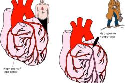 Нарушенние кровотока при стенокардии