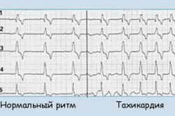 Сердечный ритм в норме и при тахикардии