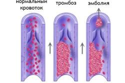 Тромбоэмболия схема