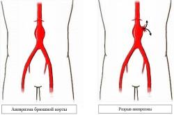 Аневризма брюшной аорты и её разрыв