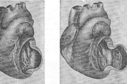 Степени развития аневризмы сердца