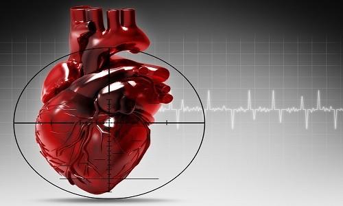 Лишние хорды в сердце
