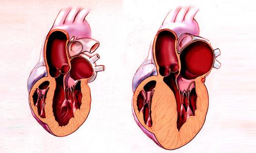 Гипертрофия стенки в левом желудочке