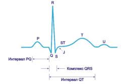 Схема 1. Элементы кривой на ЭКГ