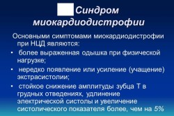 Синдром миокардиодистрофии