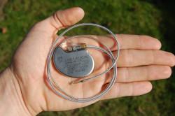 Однокамерный электрокардиостимулятор