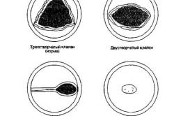 Пороки аортального клапана