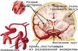 Причины аневризмы мозга