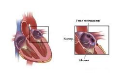 Схема абляции сердца