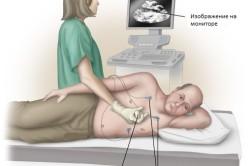 Техника проведения эхокардиографии