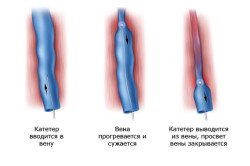 Схема установки катетера