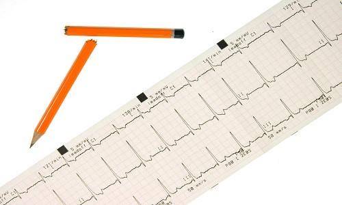 Тахикардия сердца