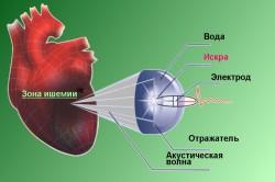 Ударно-волновая терапия при ишемии