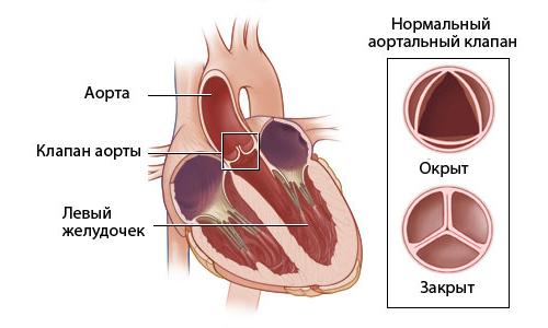 Устройство аортального клапана