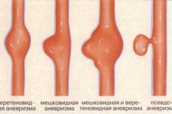 Виды аневризм при атеросклерозе