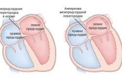 Диагностика аневризмы межпредсердной перегородки