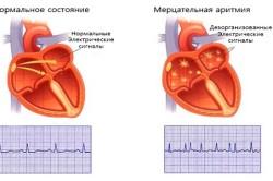 Нормальный сердечный ритм и мерцательная аритмия