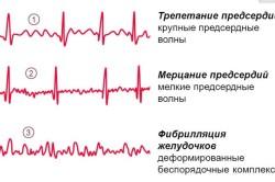 Мерцательная аритмия на электрокардиограмме